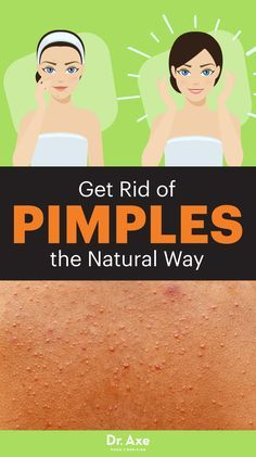 The most common skin condition in America, acne, often called zits, seems to pop up out of nowhere. However, there are all-natural ways for how to get rid of pimples.