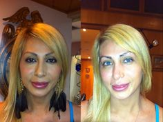 change eyes color see more before and after turquoise green - Eye Color Change Surgery Before And After