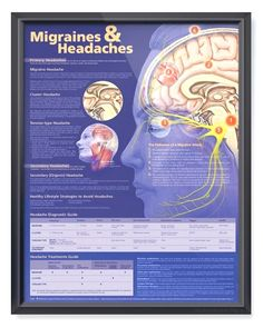 $14.99 - $19.99  ·  Detailed 20x26 inch human anatomy poster illustrates and describes three main types of headaches with steps in the pathway of a migraine attack.... #migrainetips