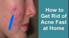 How to get rid of Acne fast at home overnight|Girls Face Beauty Tips|How to get glowing skin|pimples treatment and home remedies|Health and beauty tips