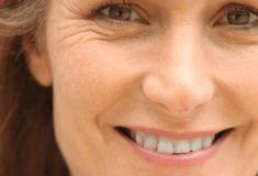 Yüzde, olması gerekenden daha erken bir yaşta kırışıklık oluşmaya başlamasının; vitamin eksikliğinden tütün ürünleri kullanımına, cildin yeterince nemlendirilmemesinden çevre kirliliğine kadar birçok sebebi olabilir. Siz de erken kırışıklık oluşumunu nasıl önleyeceğinizi öğrenin ve hangi yaşta olursanız olun güzel yüzünüzle ışıldayın.
