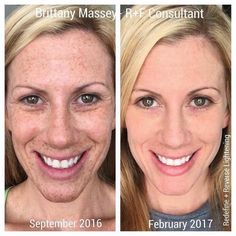 "WHOA! Looking to clean the slate from years of sun damage or melasma from pregnancy? Here's what consultant Brittany had to say about her stunning results with the Rodan + Fields Reverse and Redefine Regimens: ""This is me. Before. After. Makeup-Free in both. We say it's life-changing skincare. It really is. Don't just read about it. Take immediate action!"" #LifeChangingSkincare"