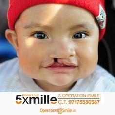 Con il tuo #5x1000 puoi regalare un nuovo #sorriso a un bambino nato con malformazioni al volto. Cosa aspetti? È un #gesto semplicissimo e cambia per sempre una #vita
