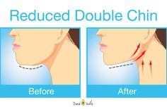 The best exercises for getting rid of that unwanted double chin and neck fat.