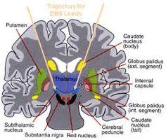 craving - dopamine - brain - nucleus accumbens dopamine - Google ...