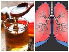 Sistemul respirator este o parte vulnerabilă a corpului, iar o cură periodică de detoxifiere pulmonară este necesară pentru buna funcţionare a întregului organism. Plămânii îndeplinesc o funcţie vitală în organism, deoarece ei transportă oxigenul la nivel celular şi elimină dioxidul de carbon, făcând astfel posibilă funcţionarea tuturor organelor. Detoxifierea periodică, esenţială Zilnic, plămânii sunt expuşi Natural Health Remedies, Red Wine, Alcoholic Drinks, Food And Drink, Healthy, Glass, Medicine, Syrup, Health
