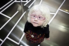 An albino child attends an exhibition about albinos at the Ethnology Museum of Valencia. Photographed by Ana Yturralde from Valencia, Spain