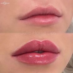Lip filler if used correctly can give the most natural, beautiful, sexy results. This is a job extremely well done by an experienced injector in lip fillers. Repost No duck lips, not overfilled, just gorgeous Restylane Lips, Botox Lips, Lip Injections Juvederm, Face Fillers, Botox Fillers, Nice Lips, Perfect Lips, Lip Augmentation, Hair Beauty