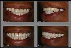 Replacing missing teeth is done with dental bridges or implants. See pictures of porcelain dental bridges by Charlotte dentist Dr. Zoom Teeth Whitening, Teeth Whitening Remedies, Teeth Implants, Dental Implants, Dental Hygienist, Dental Bridge Cost, Dentist Day, Dental Surgery, Cosmetic Dentistry