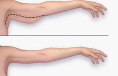 DomPelenPomyslow.pl Obwisła skóra na ramionach i brzuchu. Domowe metody niewymagające ćwiczeń.