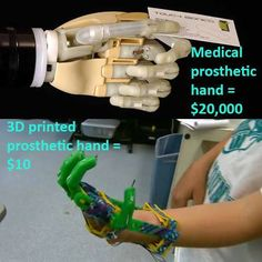 Leon McCarthy has been missing fingers on his left hand since birth. Traditional prosthetic units can run tens of thousands of dollars. In search of a cost-effective alternative, Leon's father discovered a YouTube video by inventor Ivan Owen. The cost of materials is all that is required.  http://www.iflscience.com/technology/man-makes-3d-printed-prosthetic-hand-son-only-10