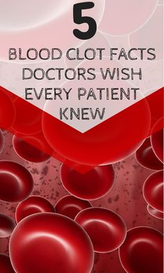 Arteries Remedies 5 Blood Clot Facts Doctors Wish Every Patient Knew - Potentially fatal blood clots, known as venous thromboembolism (VTE), are more likely when you're hospitalized or part of a high risk group. Learn how to reduce your risk. Holistic Remedies, Natural Health Remedies, Blood Pressure Remedies, Nursing Notes, Varicose Veins, Health Tips, The Cure, Doctors, Facts