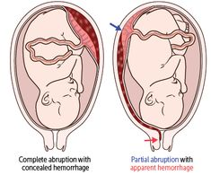 Repro (Pregnancy Complications) Flashcards   Memorang What Is Placenta, Placenta Accreta, Infant, Pregnancy, This Or That Questions, Children, Radiology, Young Children, Baby