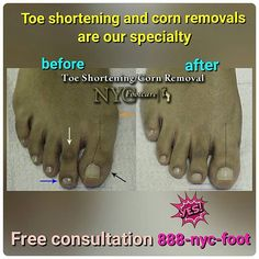 Fix your #feet Call #NYC #FOOTCARE 888-nyc-foot / nycfootcare.com / 212.385.2400 #nycfootcare #bunion #nypodiatrist #hammertoes #bunions #nj #feet #footcare #bunion #hammertoe #podiatry #podiatrist #foot #footpain #downtown #cosmeticfootsurgery...