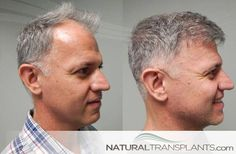 Cost Of Hair Transplant | Hair Transplant Before and After