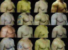 How to Lose Man Boobs - Get Rid of Gynecomastia Moobs Gyno Exercise