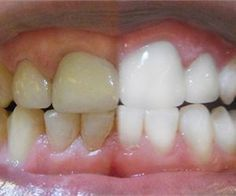 Natural Teeth Whitening Remedies Unbelievably Simple Trick Erases Teeth Stains Over Night - There is a way to get rid of tooth decay and heal cavities using products that are natural and easily available. Teeth Whitening Remedies, Teeth Whitening System, Natural Teeth Whitening, Whitening Kit, Fluorosis Dental, Dental Care, Dental Braces, Dental Hygienist, Dental Implants