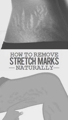 How To Get Rid of Stretch Marks Naturally Fast