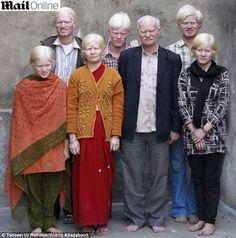 Indianos formam maior família de albinos do mundo.