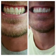 Brighter...whiter...cleaner  #teeth 🙋 YES PLEASE! 👀 Seeing is believing! Try our #toothpaste & you'll be shocked by the results!  😁Erics teeth are so white and clean 😃the tube is huge so it will last months (you only need a little bit each time) I have in 2 in stock and can ship out (or meet you) this week for $9.00 total cost or you can order at my site https://acti-labs.com/me/christina-lehman/teeth/ Don't worry 😉 I have more on the way so preorder now (save a little money by order in…