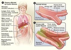 Cystic Fibrosis- Multi system disorder of exocrine glands, leads to increased production of thick mucous