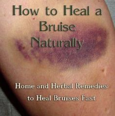 natural and safe home and herbal remedies to treat bruises and make them fade faster.