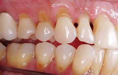 Dentaltown - Cervical tooth abfraction is the pathological loss of tooth substance caused by biomechanical loading forces that result in flexure and failure of enamel and dentin