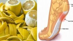Limon Kabuğu ile Eklem Ağrılarından Kurtulun Kefir, Health And Beauty, Chicken Recipes, Diy And Crafts, Skin Care, Desserts, How To Make, Muscle, Health