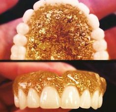 Gold glitter dentures
