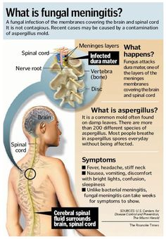 fungal meningitis, what has been going around due to contaminated steroids