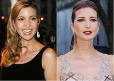 Ivanka Trump Plastic Surgery Before and After - http://www.celebsurgeries.com/ivanka-trump-plastic-surgery-before-after/