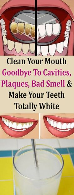 Clean Your Mouth! Goodbye To Cavities, Plaques, Bad Smell and Make Your Teeth Totally White Have you ever wondered why Tibetan monks have perfect teeth without cavities, even at any age? Your secre… Teeth Health, Healthy Teeth, Oral Health, Dental Health, Dental Care, Medical Care, Stay Healthy, Health Diet, Fitness Workouts