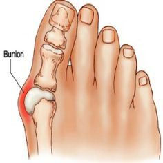 How To Cure Bunions Bunions - ouch looks painful!! if you would like to be able to wear shoes, sandals and boots again without being in pain take a look at Meanfeet's range of Wide Fitting Bunion Relief Footwear at www.meanfeet.com