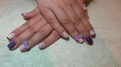 nails#cupcake#pink#bows