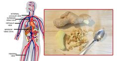Ginger has been long-knownto be one of the most beneficial spices for a variety of reasons. Aside from adding flavour to your meals, it contains a lot of useful nutrients which can provide you with many health benefits. Ginger can be consumed in many different ways, including being used as...More