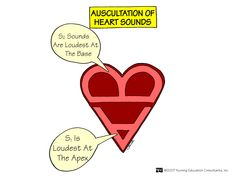 Auscultating heart sounds (like the A and B for apex and base)