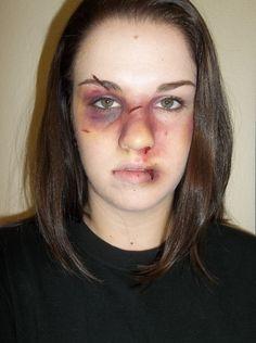 Bruises/cuts/scars