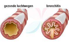 Er zijn verschillende meningen over het eten van knoflook op een lege maag. Het is zeer effectief voor het voorkomen en genezen van verschillende ziektes.