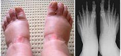 Опухшие ноги: 8 болезней, симптомом которых они являются – В РИТМІ ЖИТТЯ