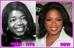 Oprah Winfrey Plastic Surgery Nose Job Before And After Plastic Surgery Photos, Celebrity Plastic Surgery, Celebrities Before And After, Celebrities Then And Now, Justin Timberlake, Justin Bieber, Beauty Secrets, Beauty Hacks, Beauty Ideas