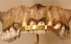 Ancient Egyptians replaced teeth by using gold wire to attach the crown from a donor tooth to their own teeth. Dentists4kids | #pediatric_dentist | www.dentists4kids.com