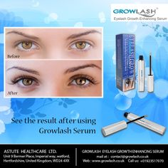 See the #result after using #Growlash #Serum