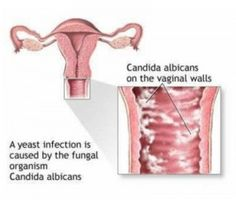 For Women: Treats vaginal discharges, hot flushes, and a feeling of tremor all over body. For Men: Eases itching of glans