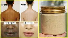 Hello Friends, Today I will be sharing with you all a full body skin brightening and whitening treatment. This treatment has 2 steps which will help to make . Glowing Skin Diet, Glowing Skin Products, Kit, Skin Brightening, Diy Skin Care, Skin Treatments, Organic Skin Care, Good Skin, Full Body