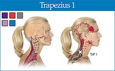 upper trapezius trigger point - Copyright – Stock Photo / Register Mark