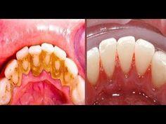 Cuando veas este método te enojaras con tu dentista por ocultarte como tu sacar el sarro en 2 días!. - YouTube