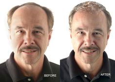 Avoid the Most Frequent Mistakes When Treating Hair Loss More Information : http://makeyourhairgrowfast.blogspot.com/2016/05/avoid-most-frequent-mistakes-when.html
