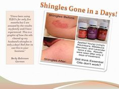 Young Living Essential Oils: Shingles Because we know I'll get them again eventually. Helichrysum Essential Oil, Doterra Essential Oils, Natural Essential Oils, Essential Oil Blends, Essential Oils For Herpes, Young Living Oils, Young Living Essential Oils, Essential Oils For Shingles, Ravintsara