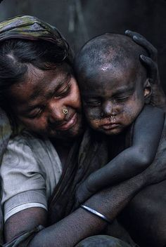 A woman holds her son, blackened by carbon dust, near the outskirts of Dhaka, Bangladesh.     From the Shehzad Noorani's Flickr set, Children of Black Dust