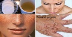This homemade lotion is made out of lemon(or apple cider vinegar) and parsley leaves. It whitens the skin and lightens freckles or dark spots of the face. After you apply this to the face,. Whitening Cream For Face, Skin Whitening, Dark Spots On Face, Acne Remedies, Tips Belleza, Beauty Secrets, Diy Beauty, Beauty Hacks, Healthy Skin
